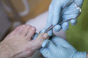 fusspflege, podologische fusspflege, podologie, behandlung